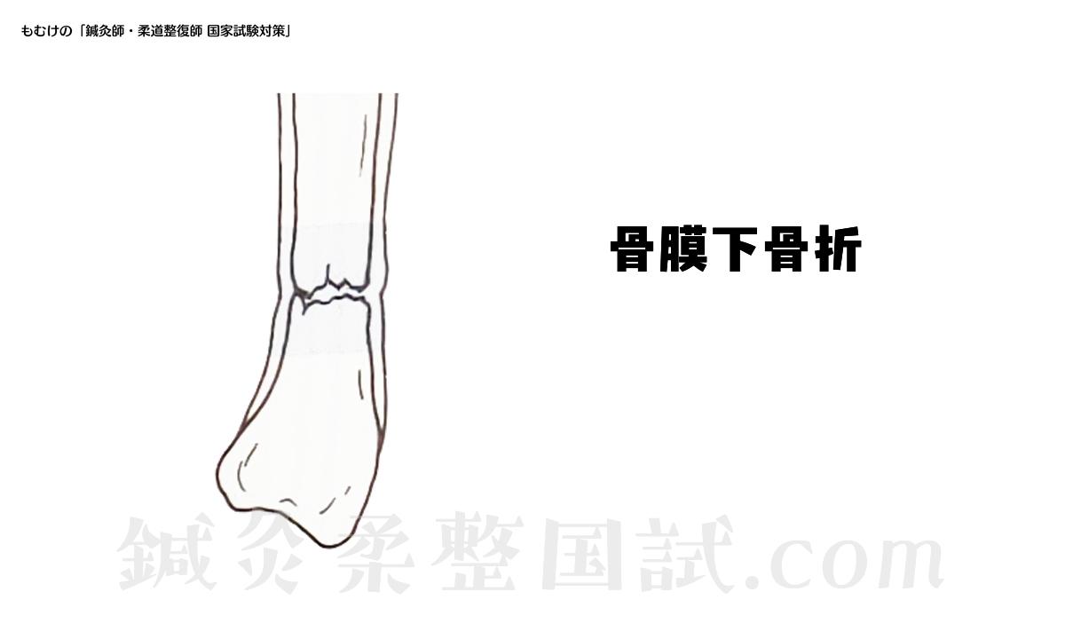 骨膜下骨折